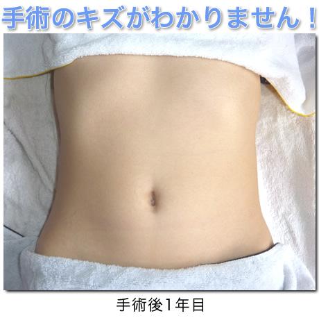 手術 痛み 鏡 腹腔